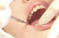 田端の歯科・歯医者、口の画像