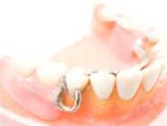 入れ歯治療イメージ