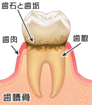歯 が 痛い 蓄膿